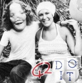 Rocky Dennis, el niño cuya rara deformidad inspiró la película Máscara