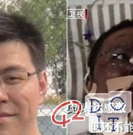 Coronavirus, infected Chinese doctors wake up from the coma with darker skin