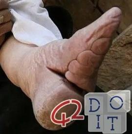 pratica di bellezza cinese di legare i piedi delle ragazze