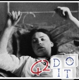 Encefalitis letárgica de 1917, la pandemia