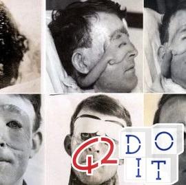 prima, operazione, chirurgica, plastica, additiva, 1917, Walter Yeo, Harold Gillies,